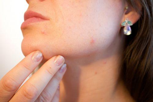 Prendre soin de sa peau grasse, comment faire ?